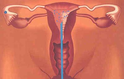 Requisitos de calidad de esperma para iui