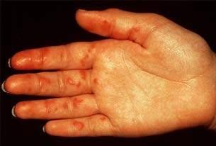 Image Result For Penyakit Kulit Vaskulitis