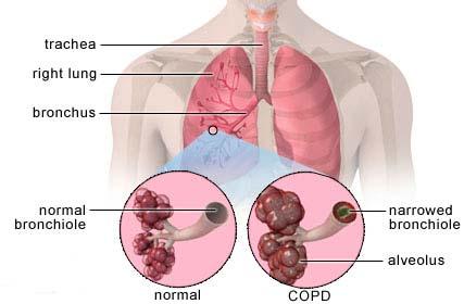 penyakit paru obstruktif menahun ppom terapi sehat