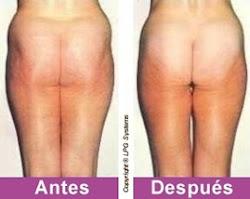 2 antes y después