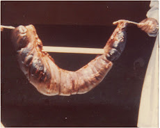 VÓLVULO DE SIGMOIDES
