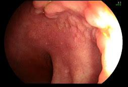 2.- Metaplasia gástrica en duodeno