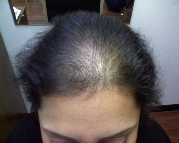 Como a las mujeres se librará de la alopecia