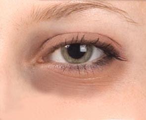 La operación láser a los ojos en astane