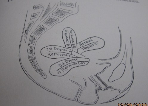 The Position of the Uterus In the Pelvis, Diagrams to help you ...