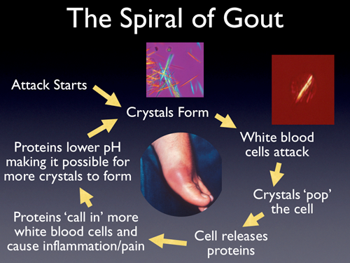 gouty arthritis indian diet gout medication allopurinol uric acid test results for gout