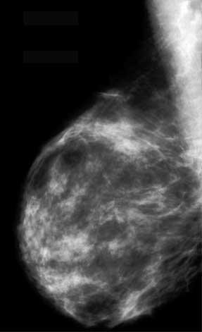 real mammogram story