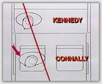 connally, recorrido de bala