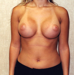 burning breast saline