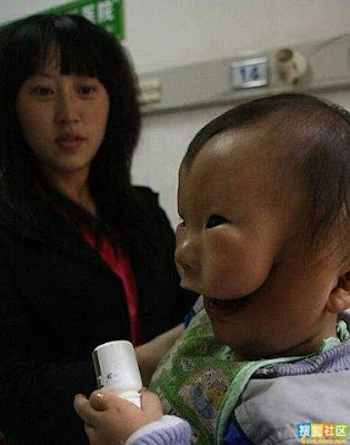 doubleface 3 A Baby In China Born With 2 Faces