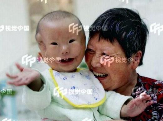 طفل مولود ووجهه مثل القناع-غرائب وعجائب-منتهى