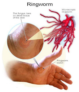 Ringworm Treatments, Ringworm Symptoms