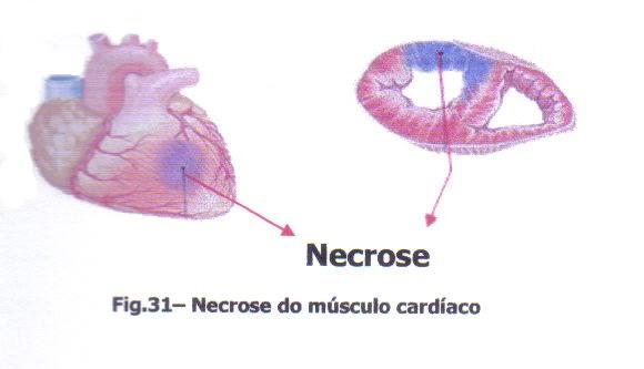 Quanto para operação em um peito de Togliatti