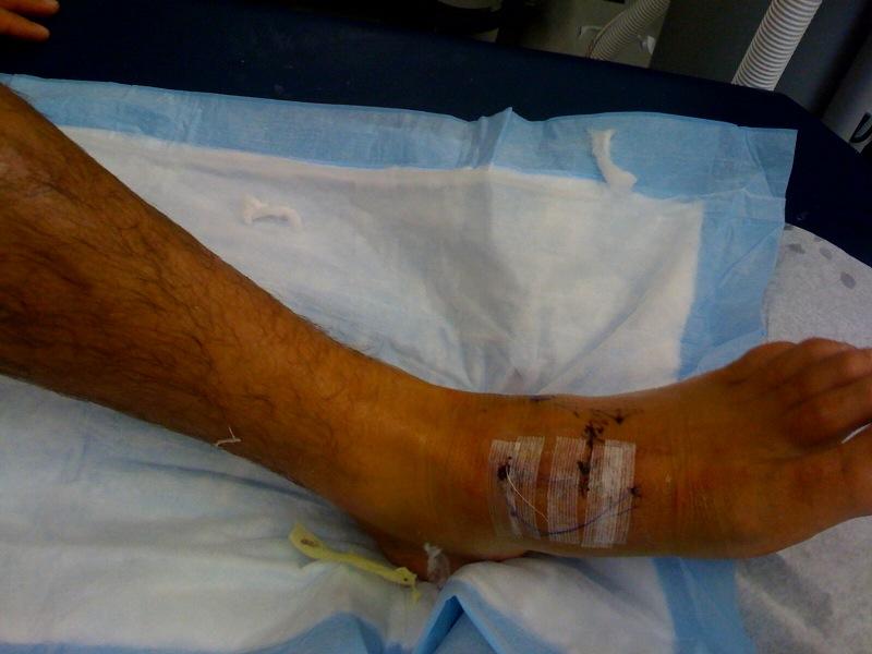 [foot+1]
