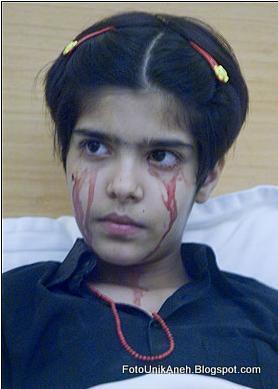 Seorang Remaja Asia Menangis Darah Atau Mengeluarkan Air Mata Darah