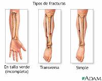 tipos+de+fracturas+2 Clasificación y Tipos de Fracturas