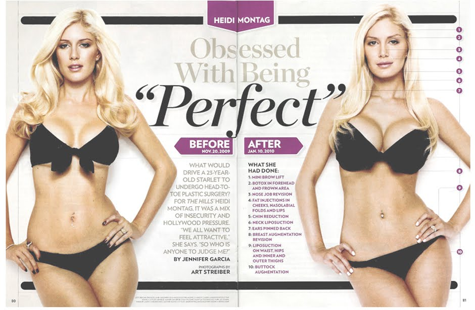 heidi montag before and after plastic surgery 2010. Here are efore and after