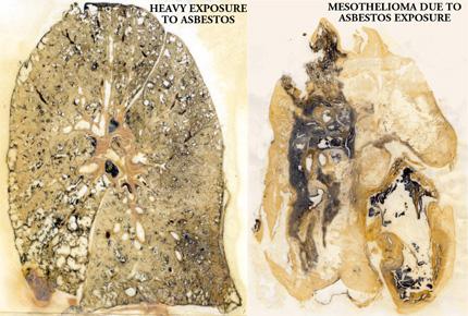 Asbestos Fibers In Lungs : Asbestosis mesothelioma asbestosis mesothelioma