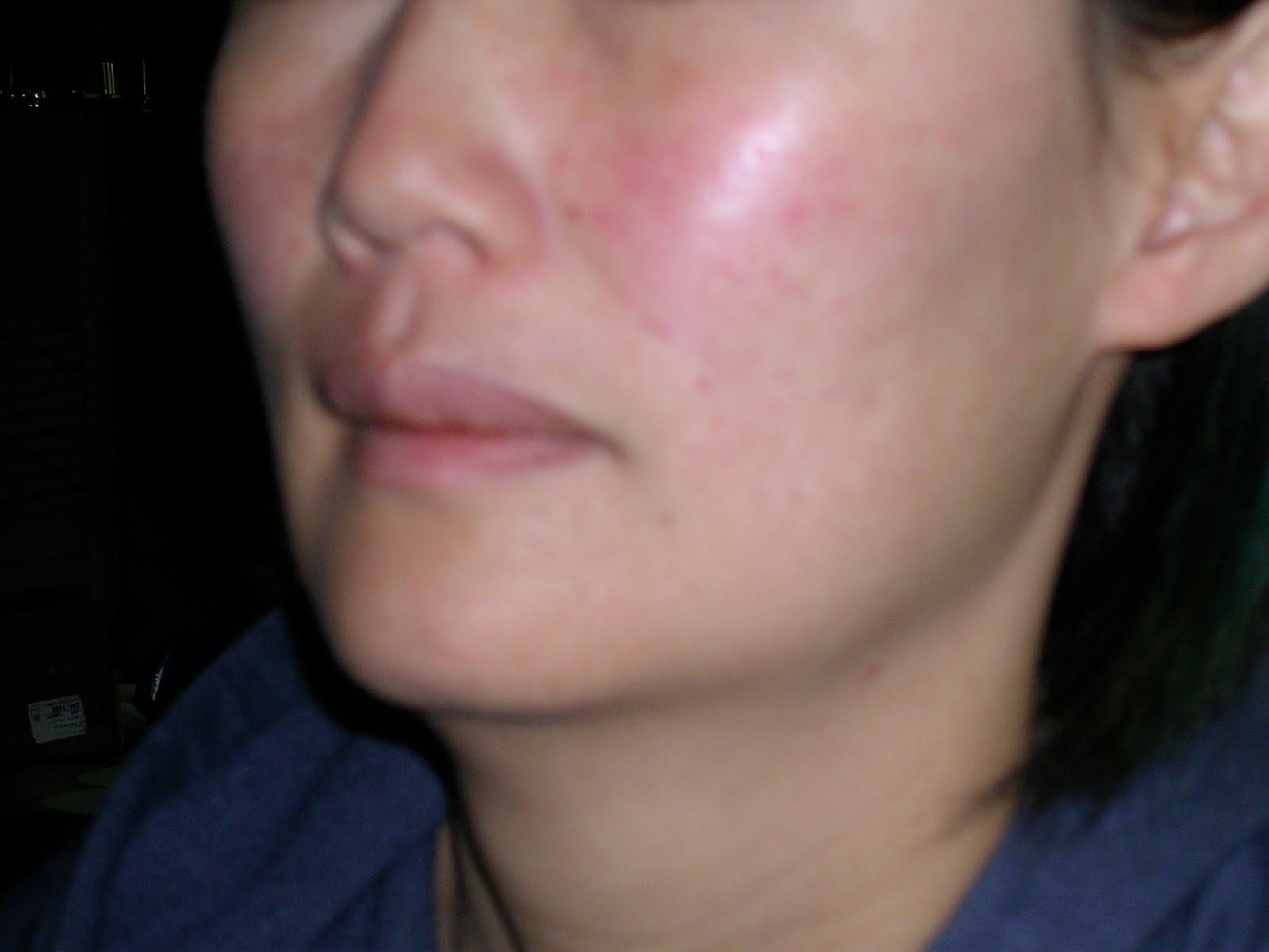 mild rosacea on face