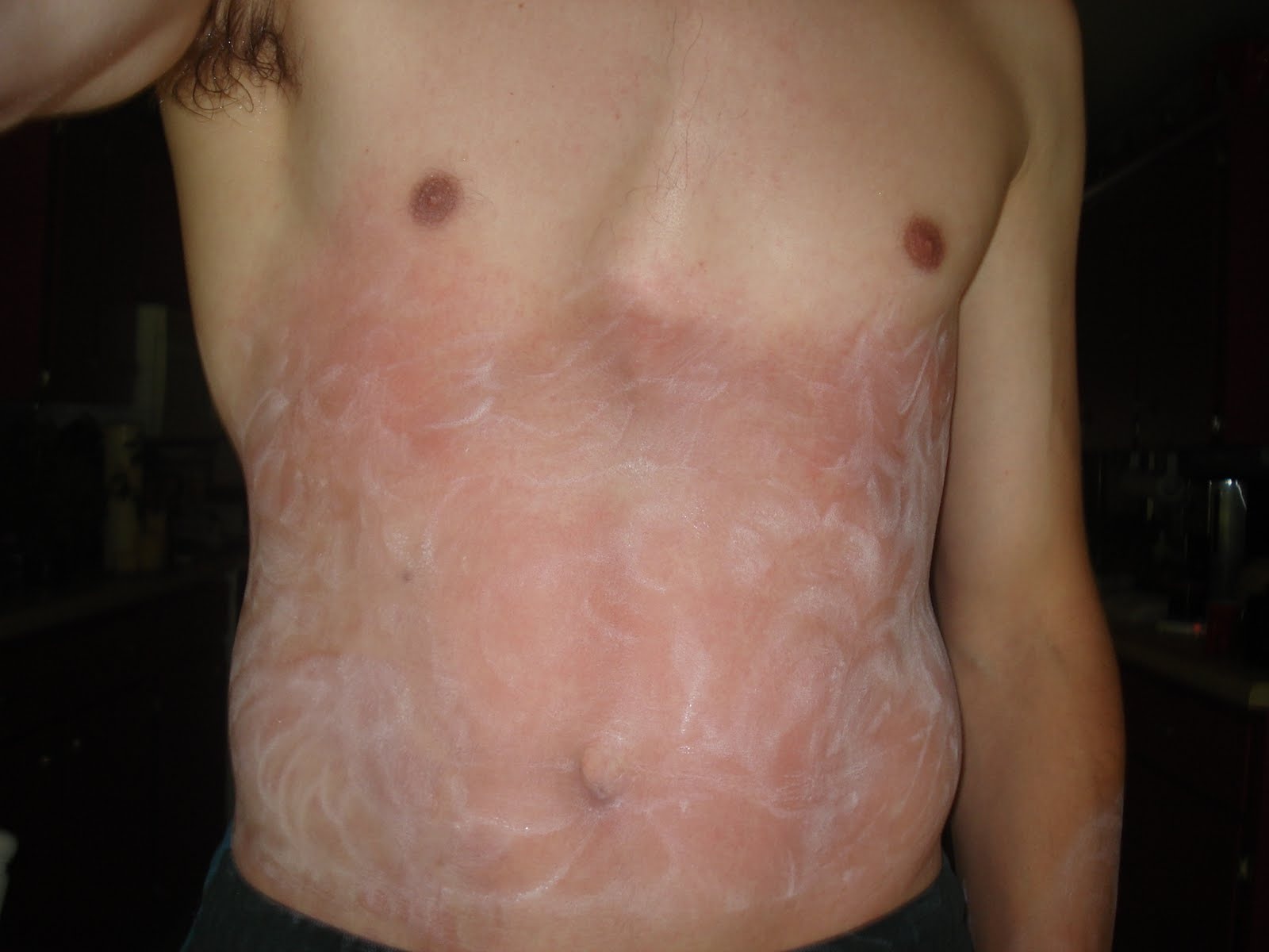 poison sumac rashes pictures
