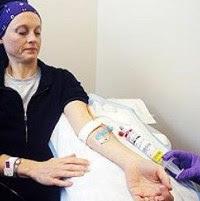 Kemoterapi Bisa Rusak Otak Pasien Kanker Payudara
