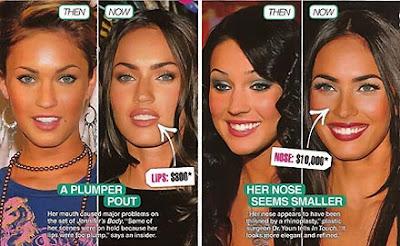 Megan Fox Nose Plastic Surgeon