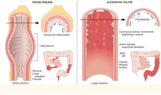 ulcerative colitis vs crohns disease essay