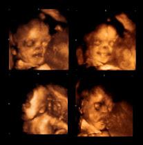 Baby Zara 3D