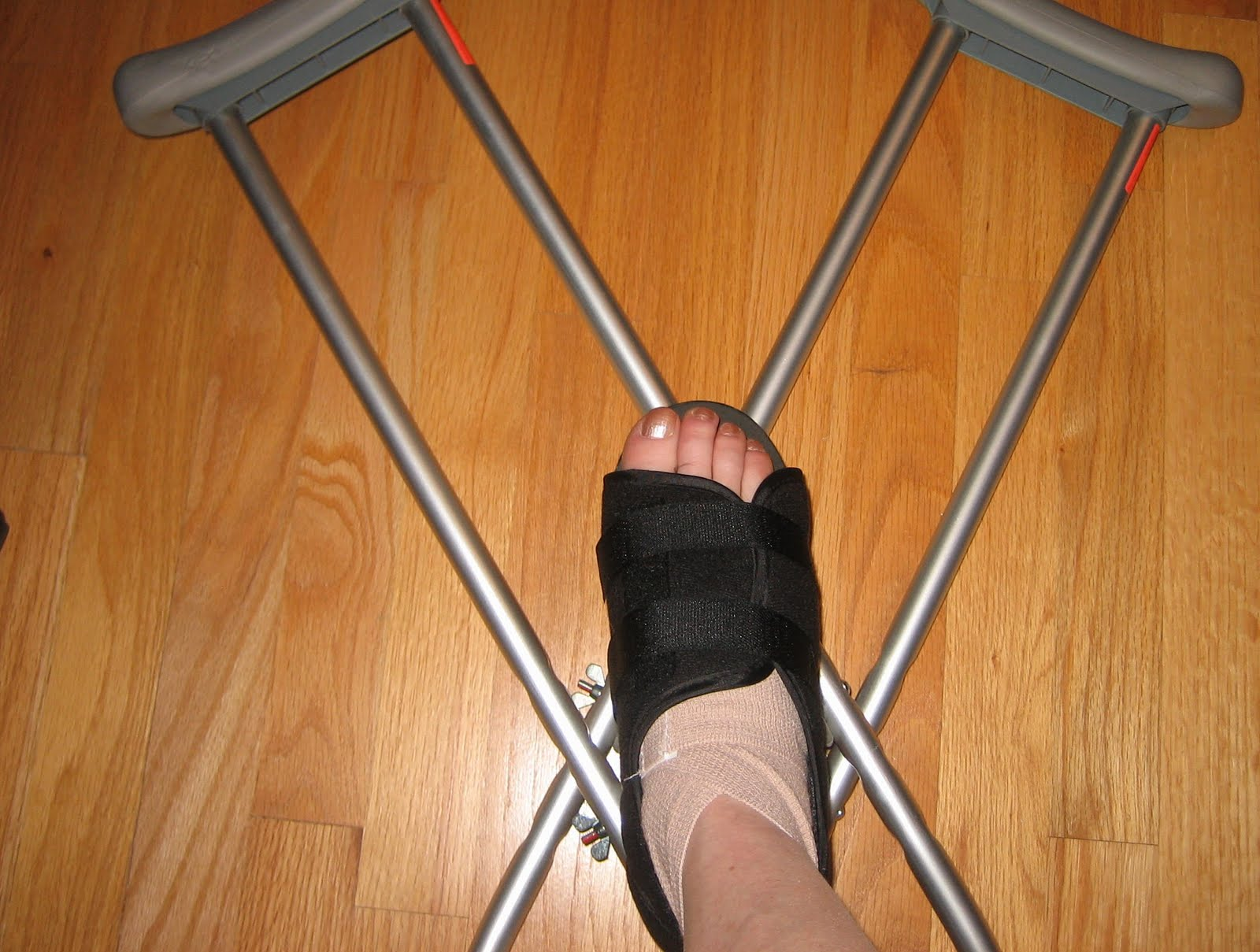 Broken Foot-1.bp.blogspot.com