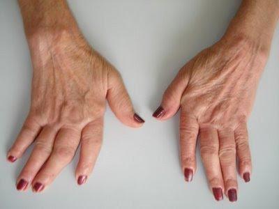 Fotos de artrose na mão