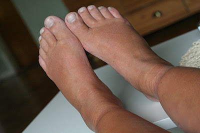 svullna ben fötter