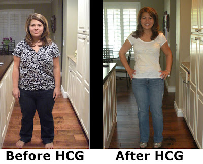 hcg drops diet before and after photos. hair hcg drops diet. hcg drops