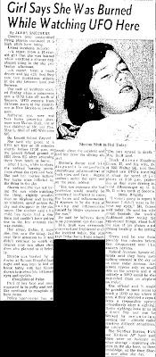Girl Says She Was Burned While Watching UFO Here - Albuquerque Tribune 4-29-1964