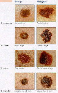 ABCDs of melanoma/skin cancer