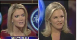 Fox News Short Skirts: Johnny Dollar Misses The Point For My Skin