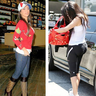 kim kardashian plastic surgery before and after. BUTT IMPLANTS eforeafter