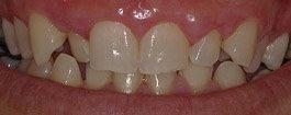 carilla dental estetica