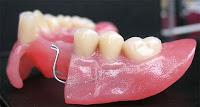 protesis dental acrílico plastico