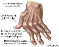 artritis artrosis y salud encias