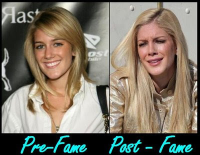 heidi montag plastic surgery cover. hair heidi montag before and