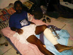 Man with an external fixation on his left tibia