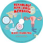 VCD Bayi Tabung