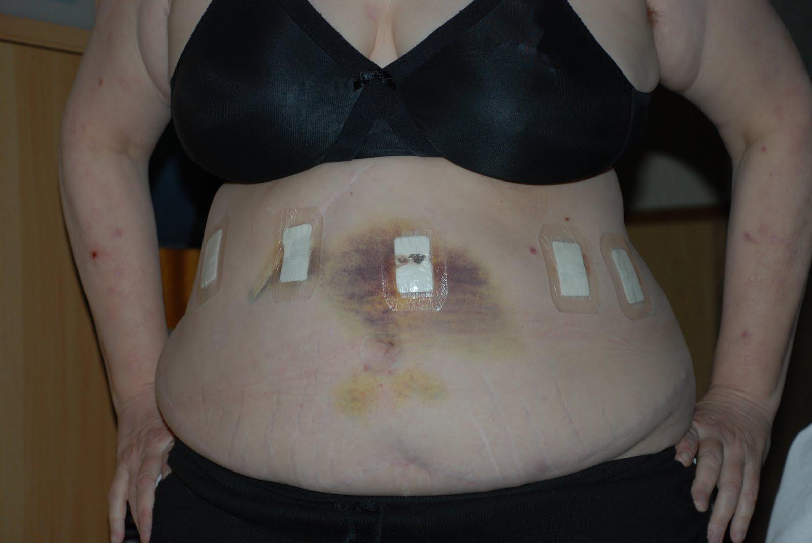 krympa magsäcken operation
