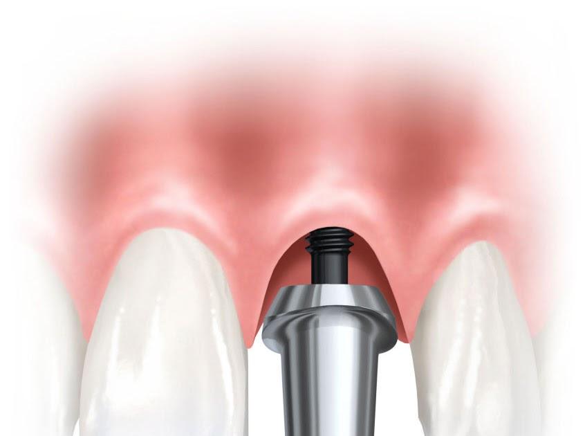 Cuanto cuanto cuesta un implante dental - Cuanto vale un palet ...