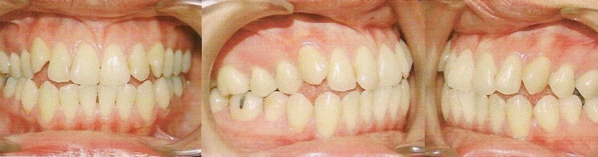 Curso online de ortodoncia presentaci n de caso cl nico for W de porter ortodoncia