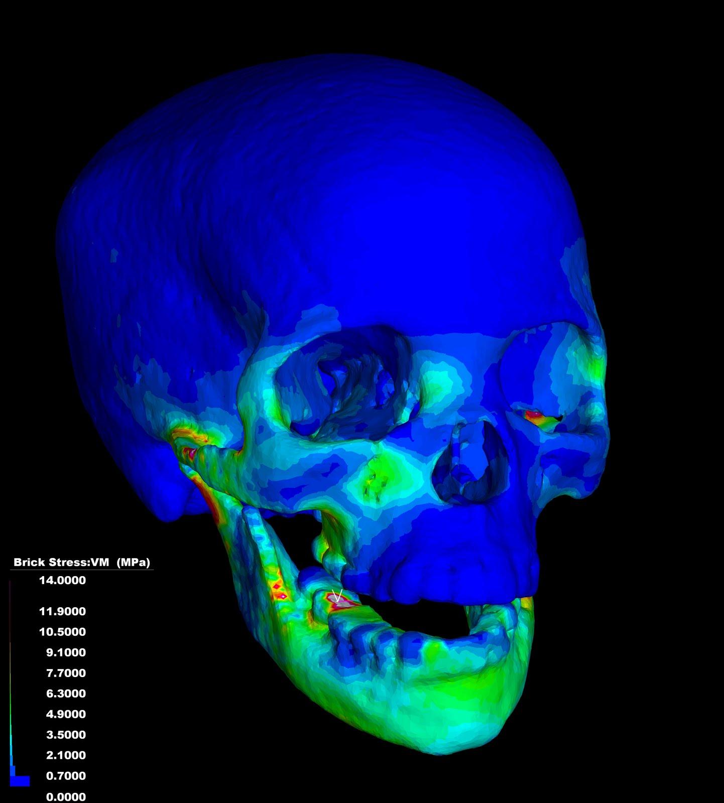 Compbiomechblog finite element model of human skull for Finite elemente modell