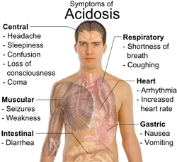 Symptoms_of_Lactic_Acidosis.png