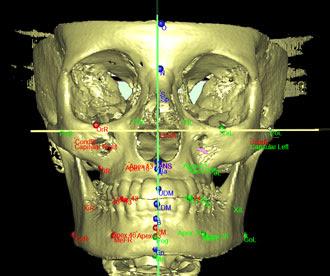 Exame de nasofaringoscopia