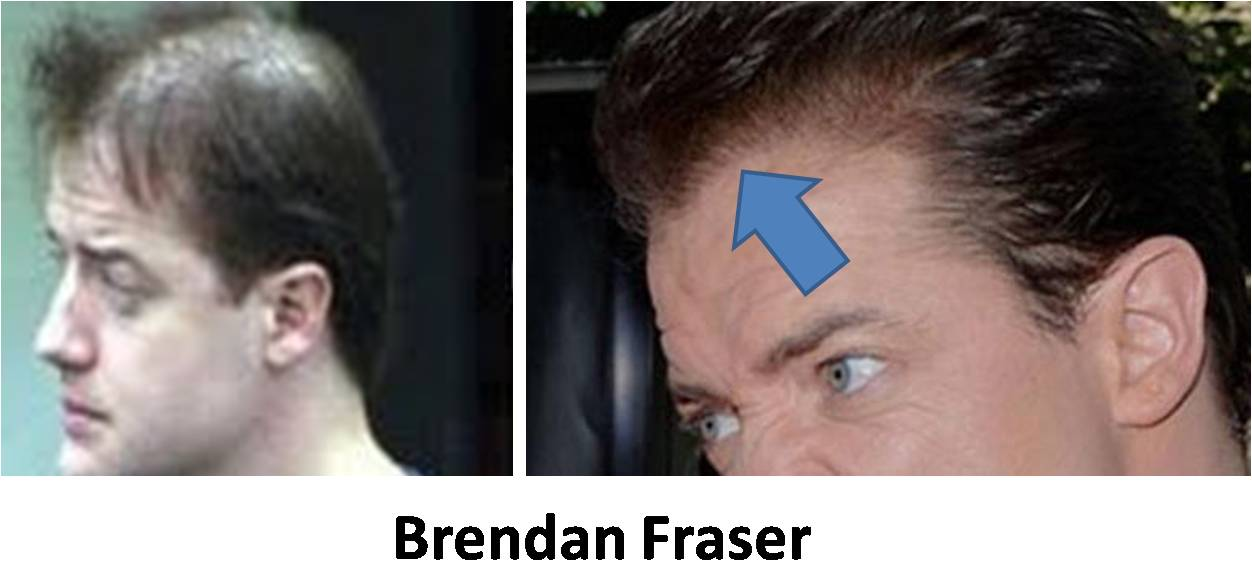 brendan fraser hair plugs. rendan fraser bald photo.