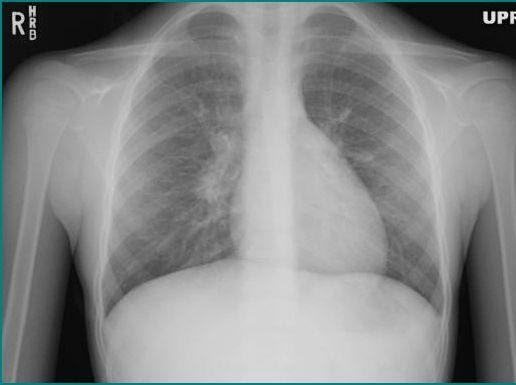 chest x ray The chest radiograph (cxr) is the most ubiquitous radiological investigation indications the chest radiograph is performed for a broad content of indications, including but not limited to.
